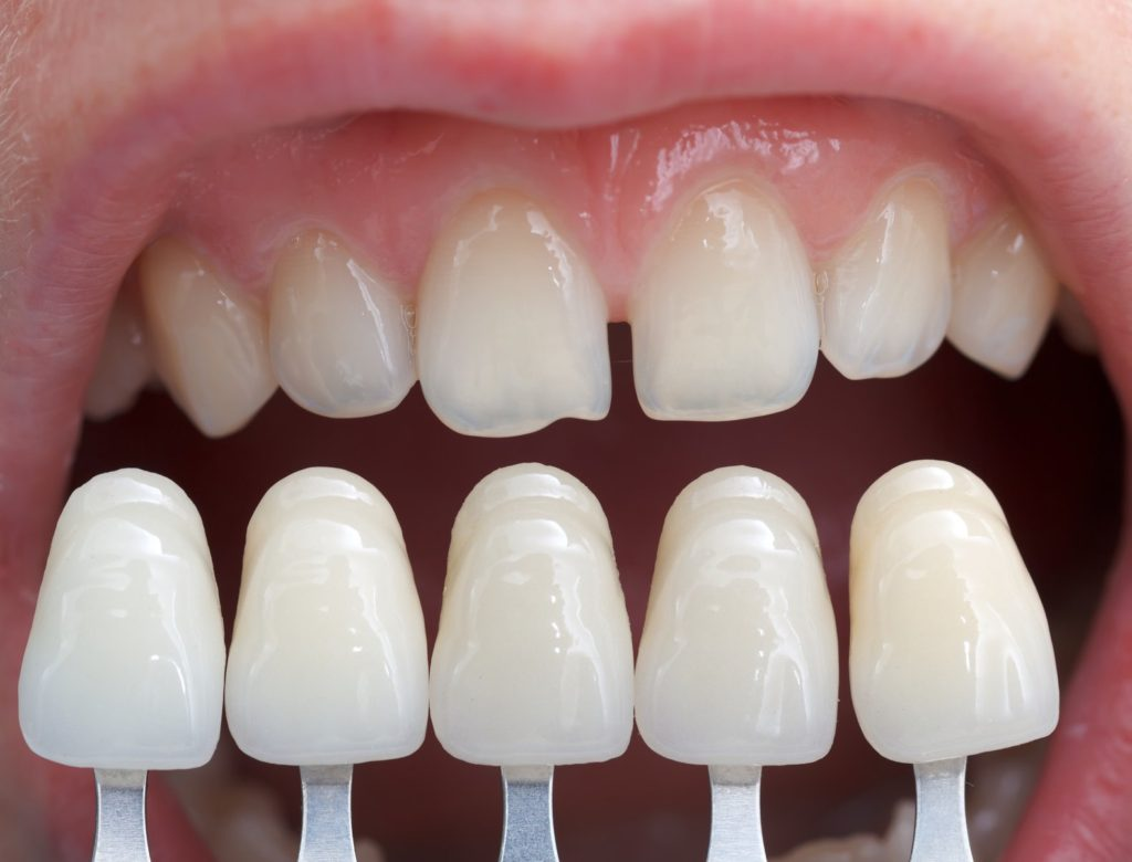 Dental-Veneers-North-Liberty-Iowa