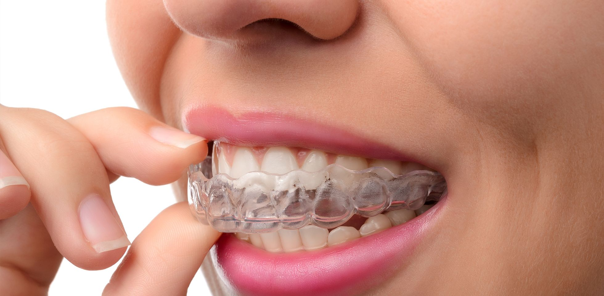 photo-service-mouthguards